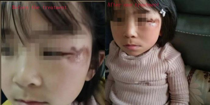 Facial Treatment Case-01