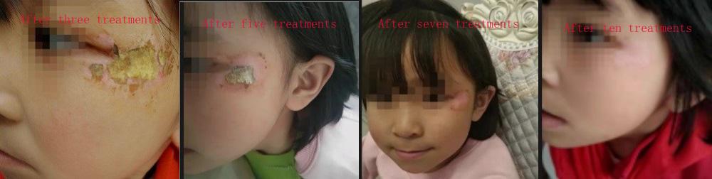 Facial Treatment Case-02